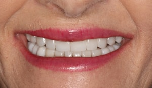 Close up of Pat's smile after dental treatment for discoloration and crookedness