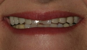 Close up of Pat's discolored and crooked smile before dental treatment