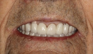 Close up of Robert's full and white smile after treatment