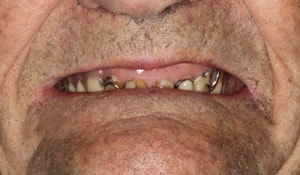 Close up of Robert's missing and discolored teeth before dental treatment
