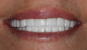 Robin's bright white smile after dental treatment
