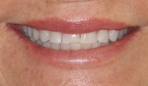 Close up of Robin's chipped and discolored smile before dental treatment