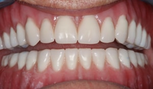 Close up of Wanell's smile after treatment for yellow teeth