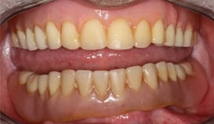 Close up of Wanell's smile before treatment for yellowing