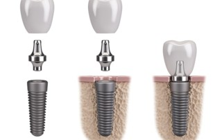 Digital illustration of a dental implant crown being put on iin 3 steps