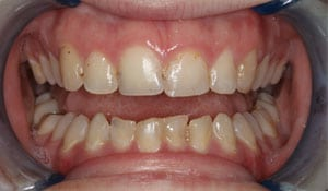 Close up of Brittney's discolored teeth before dental treatment