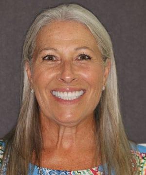 Janie's smiling portrait after dental treatment