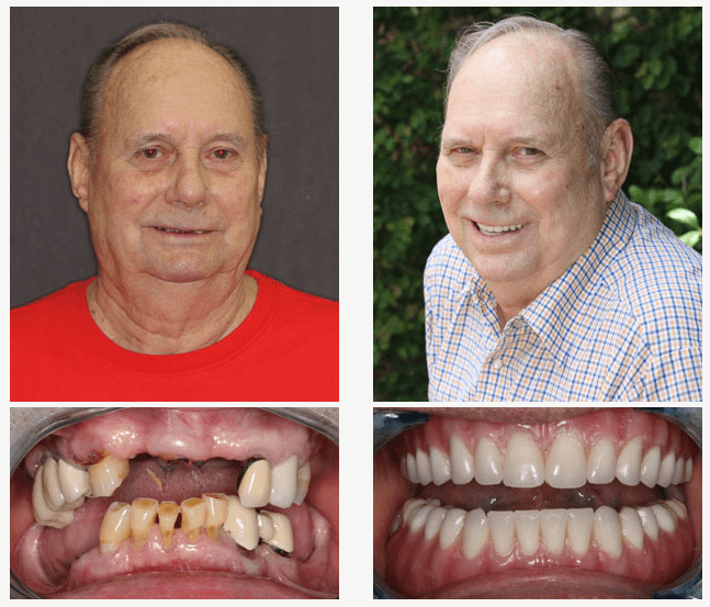 John came to us wanting to have a healthy stable smile. We were able to give him that with 4 lower snaps and upper and lower FOY's. He is now able to eat corn on the cob and still enjoy his popcorn every night. He came in with a clean corn cob that he ate himself and enjoyed every kernel!