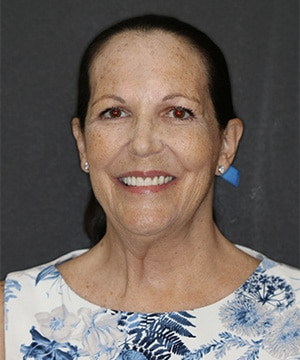 Diane's smiling portrait after dental treatment