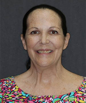 Diane's smiling portrait before dental treatment for discoloration and crookedness