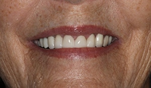 Close up of Diane's straight and white smile after dental treatment