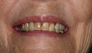 Close up of Diane's discolored and crooked teeth before dental treatment