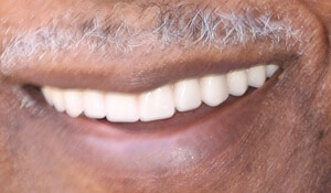 Close up of Liston's bright and straight smile after dental treatment