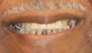 Close up of Liston's teeth before dental treatment