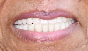 Close up of Maudie's smile after dental treatment for discoloration and spacing problems