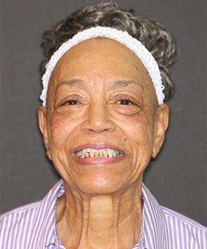 Maudie's smiling portrait before dental treatment