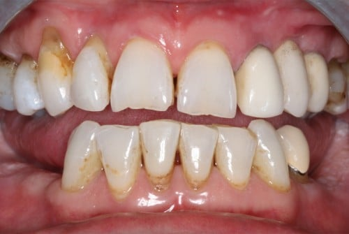 Close up of patient smile before FOY® Dentures