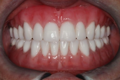 patient after smile close up