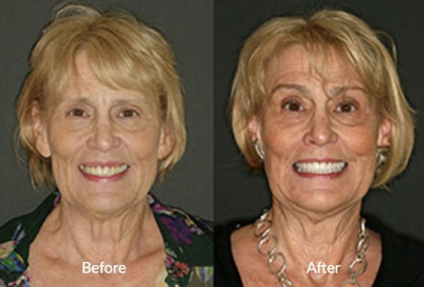Patient smile before and after TMJ treatment