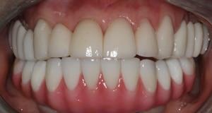 Close up of patient smile after porcelain and porcelain hybrid restoration
