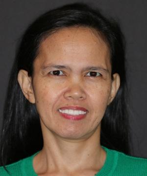 Patient smile after porcelain and porcelain hybrid restoration