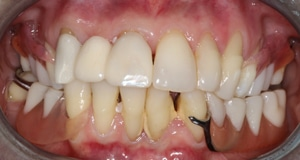 Yellow, damaged teeth with visible metal before porcelain and porcelain hybrid restoration