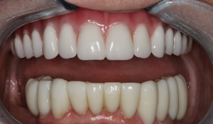 Close up of patient teeth after porcelain restoration on bottom and FOY® Dentures on top