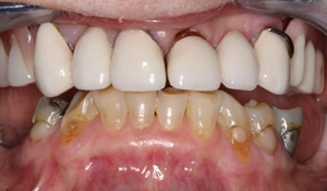 Yellow and metal on gapped teeth before porcelain restoration on bottom and FOY® Dentures on top