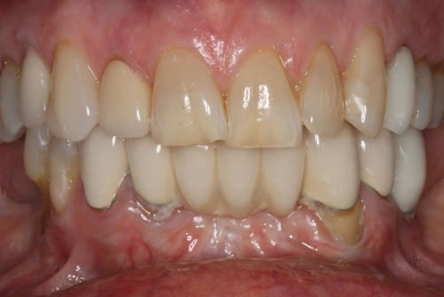 Close up of teeth before neuromuscular treatment, customized gum therapy, and a smile makeover