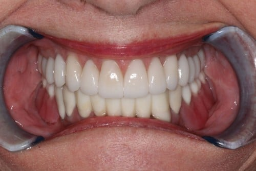 Close up of teeth after neuromuscular treatment, customized gum therapy, and a smile makeover