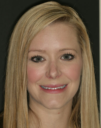 Full face portrait few of a female patient before working with a cosmetic dental procedure
