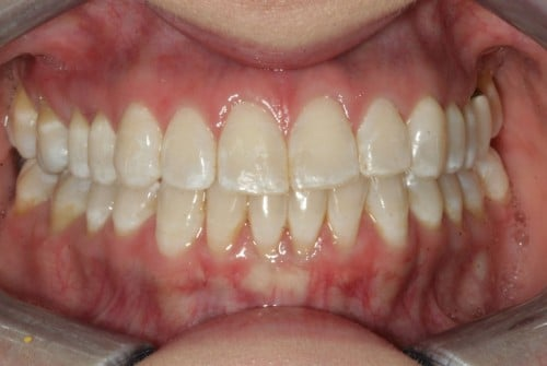 Close up of teeth before treatment for discoloration and bite