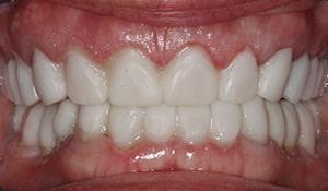Cheryl After Teeth