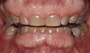 Cheryl Before Teeth