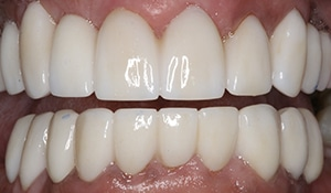 Close up of white and straight teeth after full mouth reconstruction with porcelain crowns to fix discoloration and gaps