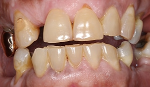 Close up of discolored and gaps in smile before full mouth reconstruction with porcelain crowns