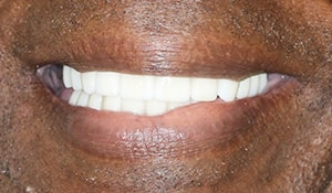 Ronald after teeth