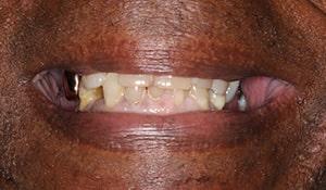 Ronald before teeth