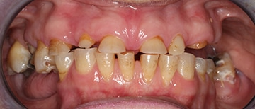Closeup of teeth from a patient before consulting with a cosmetic dentist