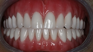 Closeup of a set of teeth from a patient of the dentists at Beyond Exceptional Dentistry