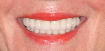 Patient smiling after VitaSmile fixes discoloration and gaps in smile