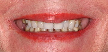 Close up of patient smile before VitaSmile fixes discoloration and gaps