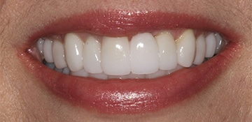 Close up of patient smile after VitaSmile