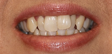 Close up of patient smile before VitaSmile