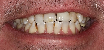 Before patient used VitaSmile and had crooked and discolored teeth