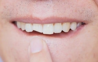 Male with chipped front tooth points to trauma. When that happens, dental implants may be the answer.