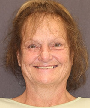 female patient of Dr. Rod Strickland's CeraSmile before dental treatment