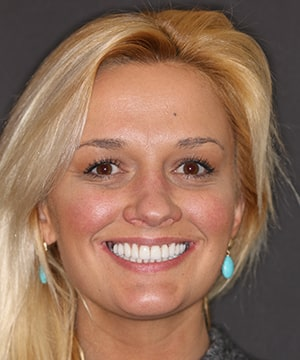 Pretty female patient of Dr. Rod Strickland showing off her amazing new smile.