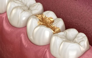 illustration image of teeth with gold fillings