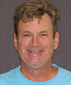 full face smile of a male patient of Dr. Strickland before CeraSmile treatment